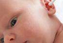 过敏宝宝如何选衣 过敏宝宝的穿衣原则
