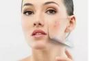 7个日常坏习惯 伤害了你的肌肤