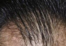 种头发有用吗?选择专业机构术后效果理想