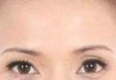 黑眼圈是怎么形成的?