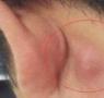 耳朵后面长了个硬包?医生:一定要警惕