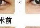 埋线双眼皮的危害有哪些?