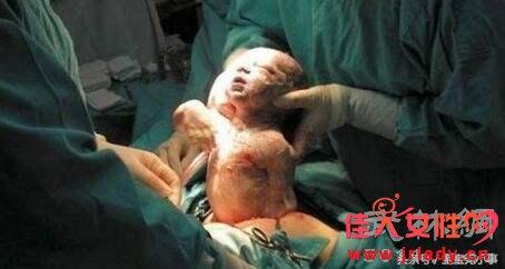 孕妇盲目学明星,结果7个月时母子双双离世