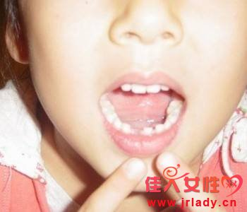 门牙掉了怎么办,如何种植牙!