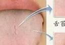 舌头有齿痕是怎么回事 正常人的舌头看病症大全图解图片