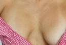 丰胸内衣预防乳房下垂吗 乳房下垂矫正方法