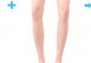 怎样改善腿型不直?教你怎样才能让腿型变直