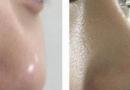 隆鼻后遗症,这几种情况可能发生