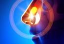 慢性鼻窦炎会不会癌变  慢性鼻窦炎的最好治疗方法