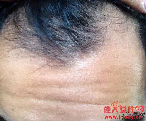 怎么治疗脱发,试试这二十五种方法!