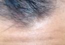 脱发的原因有哪些,内分泌失调!