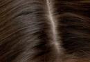 如何去掉这些头皮屑呢 去掉头皮屑的方法有哪些