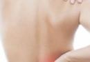女性肾阳虚是怎么引起的 肾阳虚体质如何调理