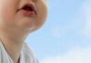 小儿肺炎平时应该注意些什么 宝妈们要注意了