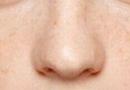 如何祛除脸上的雀斑 教你几个小方法