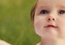 宝宝皮肤过敏怎么办 会有什么症状