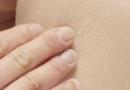 皮肤变得越来越干燥要怎么办