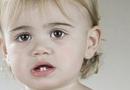 孩子的牙齿地包天怎么办 能纠正过来吗