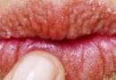 冬季嘴唇干裂护理方法 导致冬季嘴唇干裂的八大原因