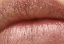 冬天护唇常见问题 你知道那些护唇妙招吗