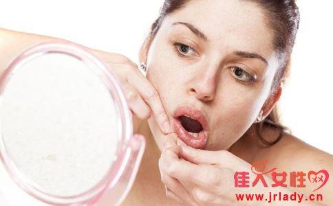 产后如何护肤 产后护肤的小窍门 产后皮肤长痘怎么办