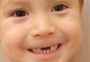 儿童蛀牙的预防方法 儿童蛀牙的危害