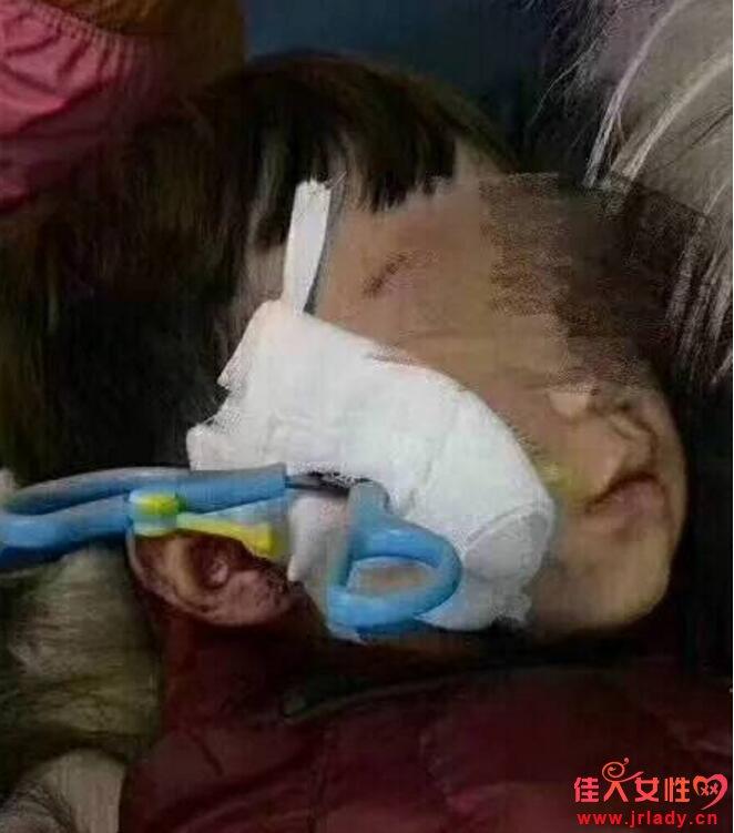2岁男童剪刀扎入面部 医生提示:随时关注婴幼安全