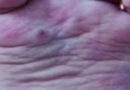 手足口病的家庭预防措施 手足口病的病因