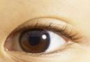 黑眼圈的形成原因有几种 黑眼圈吃什么好呢