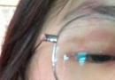 大写的疼!马思纯带状疱疹似毁容 晒发红的眼皮和起了疹子的额头