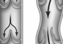 静脉曲张可以泡脚吗 静脉曲张的发病原因
